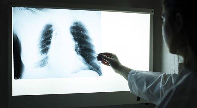 Akciğer Kanseri Vakalarının Yüzde 95'inden Sigara Sorumlu